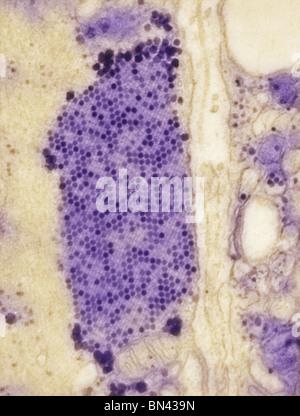 Transmission Electron Schliffbild (TEM) B3 Coxsackie Virus Partikel im Muskelgewebe - Stockfoto