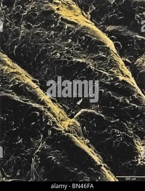 Menschliche Haut, eingefärbte Rasterelektronenmikroskop Bild - Stockfoto
