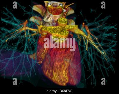 3D CT-Scan des menschlichen Herzens - Stockfoto