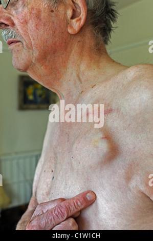Älterer Mann mit einem implantierbaren Kardioverter