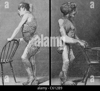 "Joseph Merrick (1862 – 1890), bekannt als die ""Elephant Man"", litt an Neurofibromatose, eine angeborene Erkrankung. - Stockfoto"