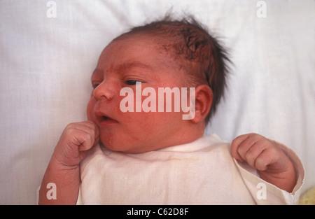 Neugeborenes Kopf Gestoßen