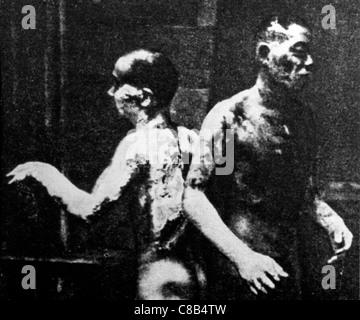 zwei brennen nach der atomaren Explosion in Hiroshima, 1945 - Stockfoto