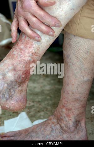 Ältere Frau Beine leiden unter Ekzemen & Krampfadern-Creme - Stockfoto