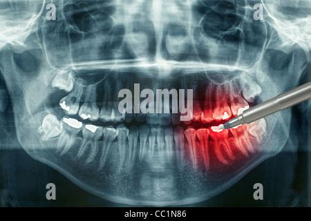 Dental Xray mit roten schmerzenden Bereich - Stockfoto
