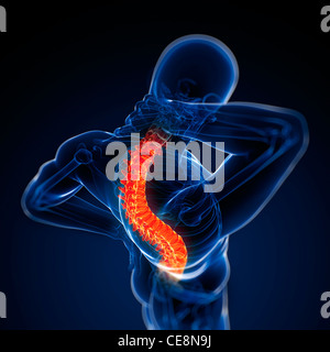 Schmerzen im Rücken, konzeptionelle Computer Grafik. - Stockfoto