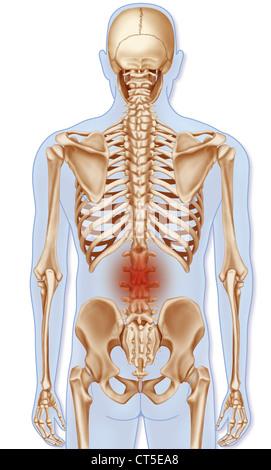 Rückenschmerzen, unteren Rücken Krankheit und menschlichen ...