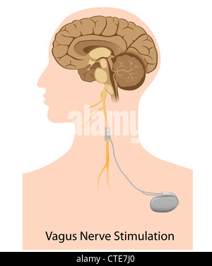 Nervus Vagus-Stimulationstherapie - Stockfoto