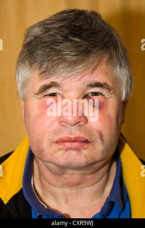 Gesichtsverletzungen zu schwarzen Augen und blaue Flecken auf einem Mann als Ergebnis der zahnmedizinischen Behandlung - Stockfoto