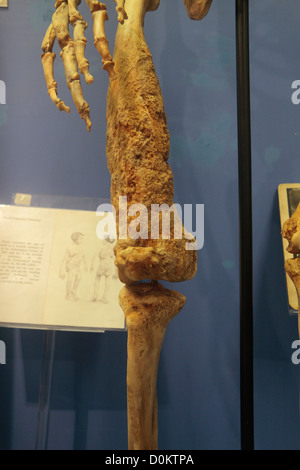 Replik des Skeletts des Joseph Merrick, Elephant Man, The Royal London Hospital Museum, Whitechapel, London, UK. - Stockfoto
