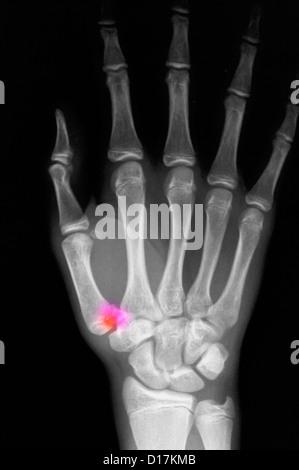 Röntgenbild Der Menschlichen Hand Und Arm Nach Einem Bruch Auf Dem