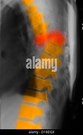 Brustwirbel Stockfoto, Bild: 151335270 - Alamy