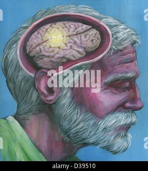 Abbildung Schuss des älteren Menschen mit Alzheimer-Krankheit - Stockfoto