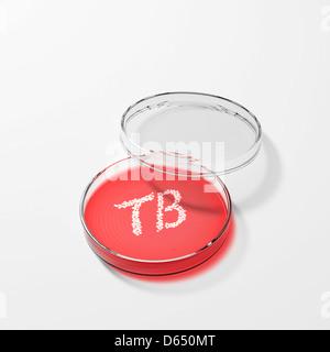 Tuberkulose-Bakterien in einer Petrischale - Stockfoto