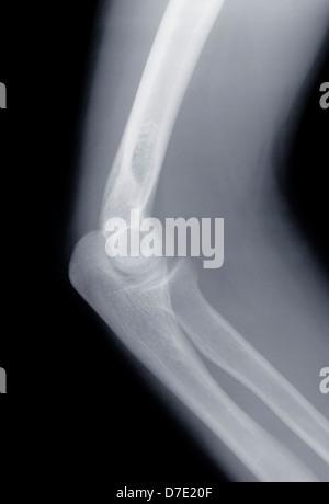 Menschliche Skelett Knochen Humerus Stockfoto, Bild: 151335006 - Alamy