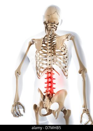 unteren Rücken Entzündung Stockfoto, Bild: 18988637 - Alamy