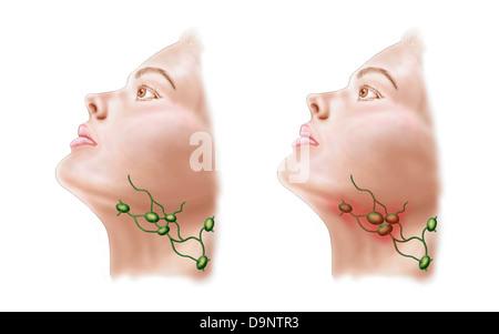 Anatomie der geschwollene Lymphknoten Stockfoto, Bild: 57643465 - Alamy
