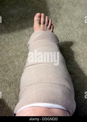 Temporäre Gaze und Ass Verband für gebrochenen Fuß abgegeben. - Stockfoto