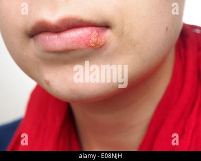ORALE HERPES SIMPLEX Stockfoto, Bild: 52305246 - Alamy