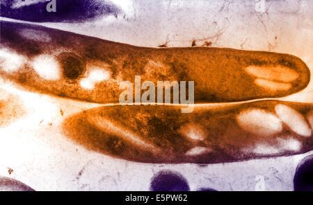 Transmission Electron Schliffbild (TEM) von Gram-positiven Mycobacterium-Tuberkulose-Bazillen, das auslösende Agens - Stockfoto