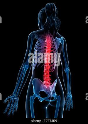 Menschlichen Rückenschmerzen, Computer-Grafik. - Stockfoto