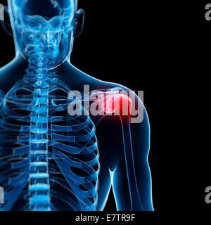Menschlichen Schulterschmerzen, Computer-Grafik. - Stockfoto