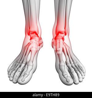 Abbildung Fuß Schmerzen Kunstwerke - Stockfoto