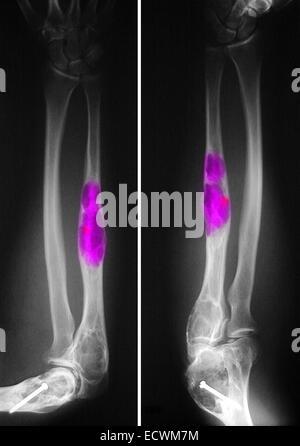 X-ray zeigt fibrösen Dysplasie der Oberarmknochen und Elle (Ulna ...