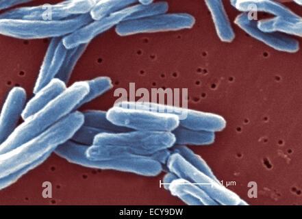 Scanning Electron Schliffbild der Tuberkulose-Bakterien. - Stockfoto