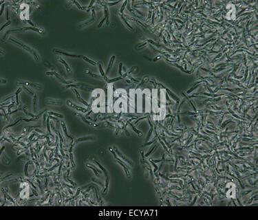Mikrophotographie von Bacillus Anthracis (Milzbrand) Sporen. - Stockfoto