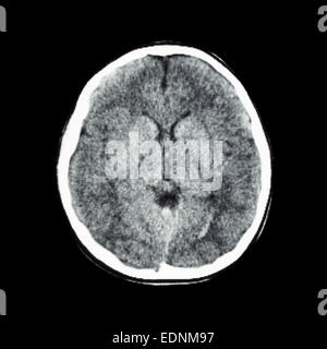 normalen CT-Scan des Gehirns (Computertomographie-Tomographie) - Stockfoto
