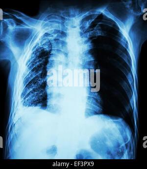 Lungentuberkulose.   Röntgen-Thorax: Rechte Lunge Atelektase und Infiltration und Erguss durch Mycobacterium Tuberculosis - Stockfoto