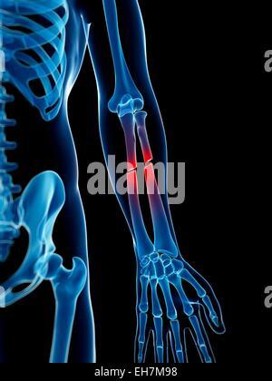 Gebrochenen Arm Knochen, Abbildung Stockfoto, Bild: 79460248 - Alamy