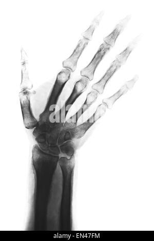 Weibliche Knochen der Hand, Handgelenk, Daumen und Finger-Anatomie ...