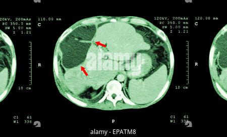 Anatomie der Katze Leber Stockfoto, Bild: 34974844 - Alamy