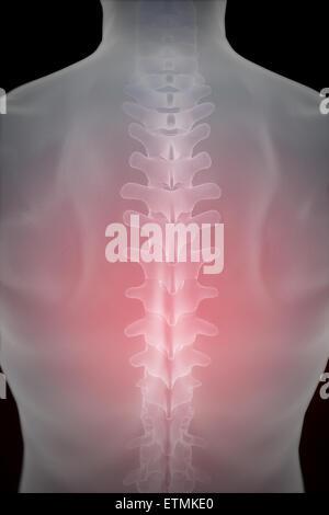 Darstellung der Wirbelsäule in den Rücken Stockfoto, Bild: 84049722 ...
