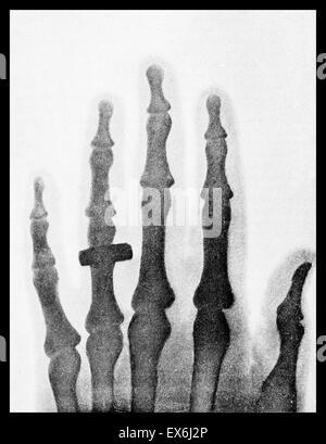 Die Hand der Frau Wilhelm Roentgen: das erste Röntgenbild, 1895 - Stockfoto