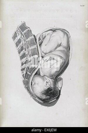 """Illustration aus """"Ein Sett anatomische Tabellen mit Erklärungen und ein Auszug aus der Praxis der Geburtshilfe"""". - Stockfoto"""