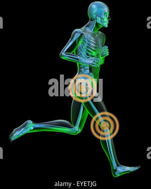 Röntgenbild eines menschlichen Körpers in der Tat laufen mit Schmerzen in der Hüfte und Knie - Stockfoto