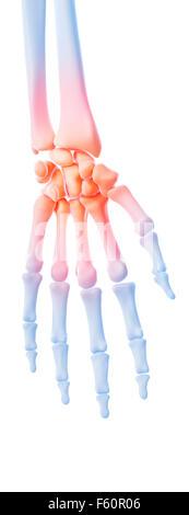 medizinische 3d Illustration eine schmerzhafte Handgelenk - Stockfoto