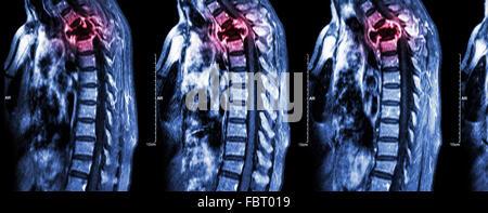 Wirbelsäule Metastasen (Krebs zu verbreiten, Brustwirbelsäule) (MRI des zervikalen und thorakalen Wirbelsäule: Brustwirbelsäule - Stockfoto