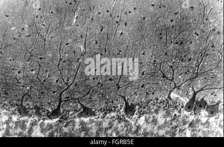 Labor mikroskop mit menschlichen gehirn d rendering u stockfoto