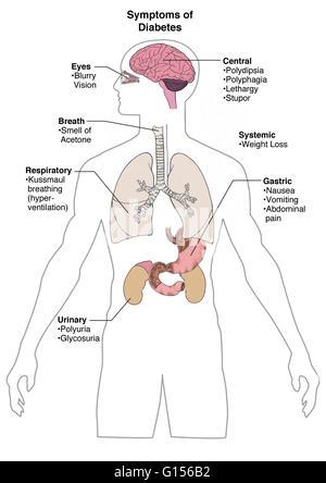 Diagramm zeigt Verdauungssystem einer menschlichen, digitale ...