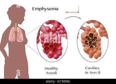 Abbildung, Emphysem, ein Zustand, gekennzeichnet durch Schäden an ...