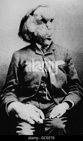 JOSEPH CARY MERRICK, ELEFANT - Stockfoto