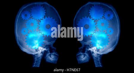 X-ray aufgeblasenen menschlicher Schädel mit großen Gehirn - Stockfoto