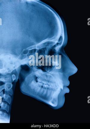Mädchen Kopf Röntgen und Silhouette. Doppelbelichtung. Portugal - Stockfoto