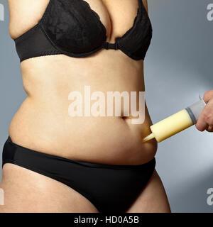 Körper eine rundliche Frau in BH und Hosen mit einem männlichen Hand eine Spritze mit Fett aus dem Bauch gesaugt - Stockfoto