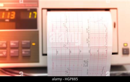 Drucken von EKG-Bericht, die sich aus EKG Iin Kreißsaal Stockfoto ...