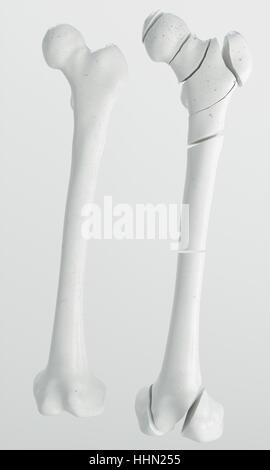 Anatomie von Hüftfrakturen Stockfoto, Bild: 57643273 - Alamy